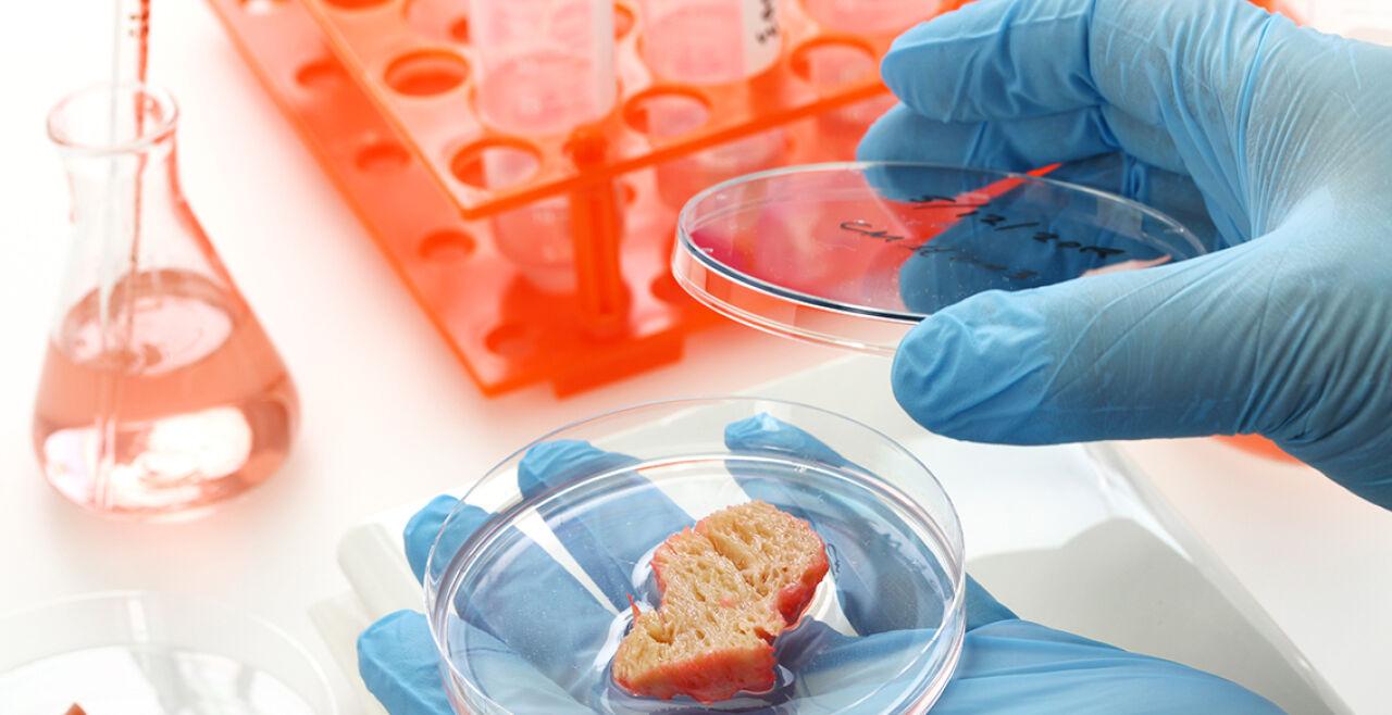 In-vitro-Fleisch - Weltweit versuchen Wissenschafter, Fleisch aus einzelnen Zellen herzustellen. Aus einer Biopsie wird im Labor ein Stück Gewebe, das dann weiter zum Wachstum angeregt wird. - © Foto: iStock / bonchan