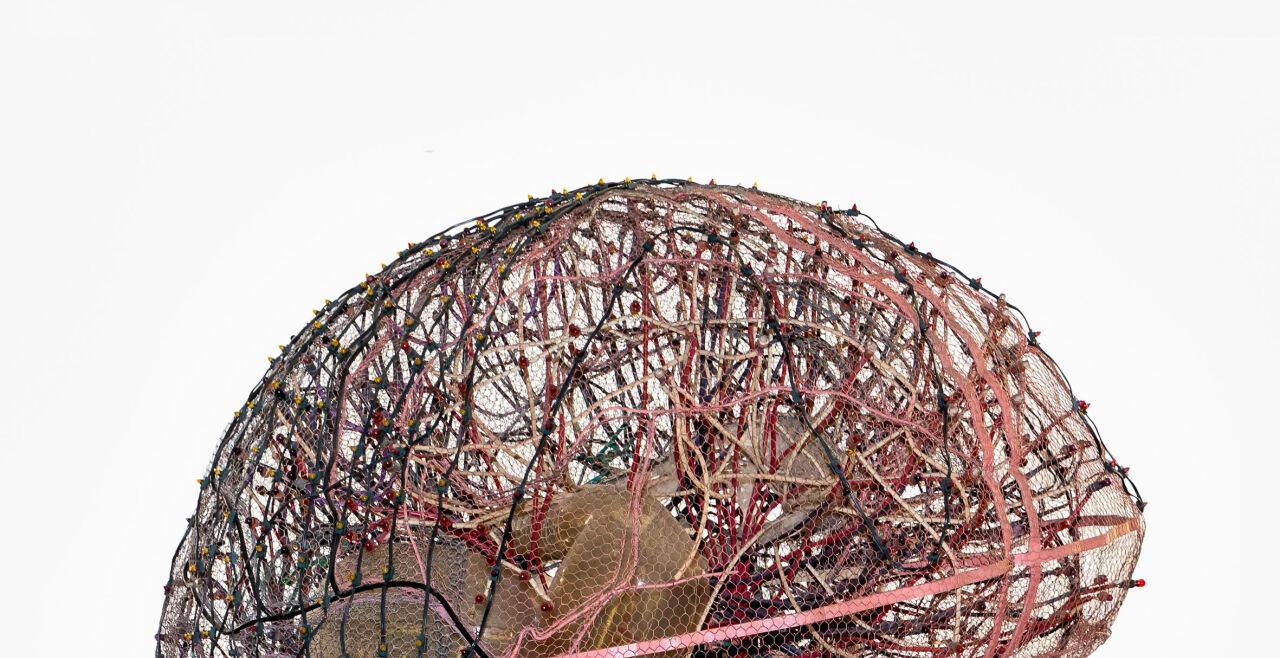 Gläsernes Gehirn - © Technisches Museum Wien