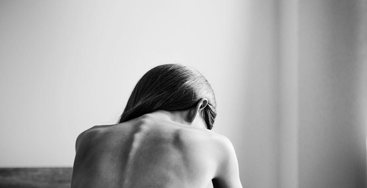 Anorexie - © Foto: iStock/KatarzynaBialasiewicz